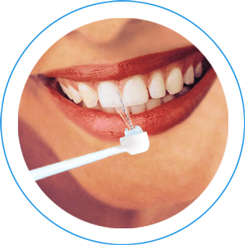 advantage sowash oral irrigator